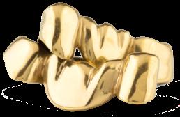 Gold Dental Crowns and Bridgework